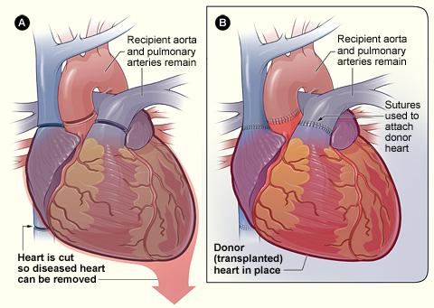 Heart_transplant_NIH