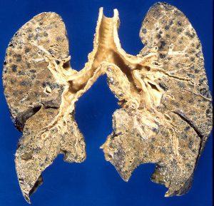 Emphysema Lungs