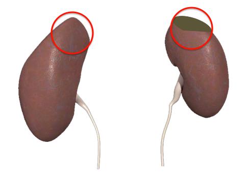 Tumor on the Kidney