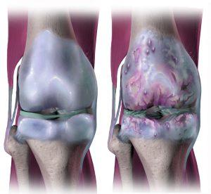 Arthritis Osteoarthritis