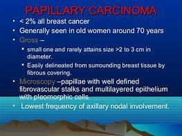 papillary breast cancer