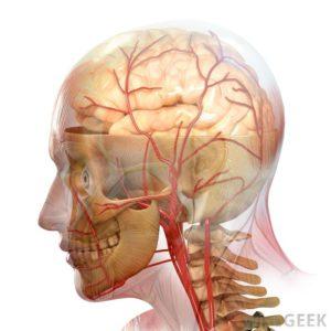 massive stroke1