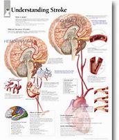 understanding strokes