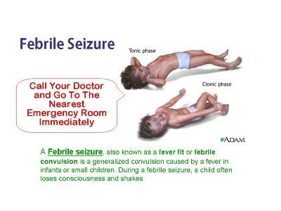 epilepsy-febrile-seizures