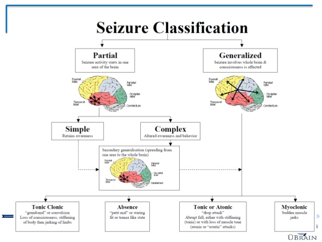seizure classification