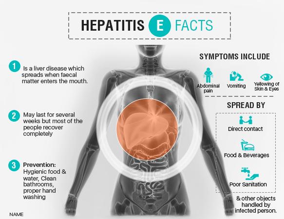 hepatitis E