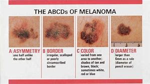 melanoma feature