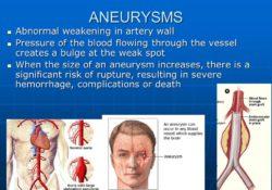 ANEURYSMS+Abnormal+weakening+in+artery+wall